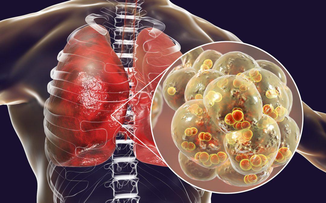 Co-infectie bij Lyme: Mycoplasma