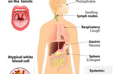 Opportunistische infecties bij Lyme: Pfeiffer