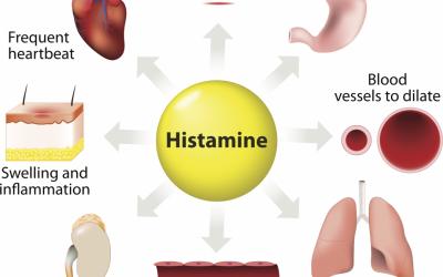 LYME & HISTAMINE