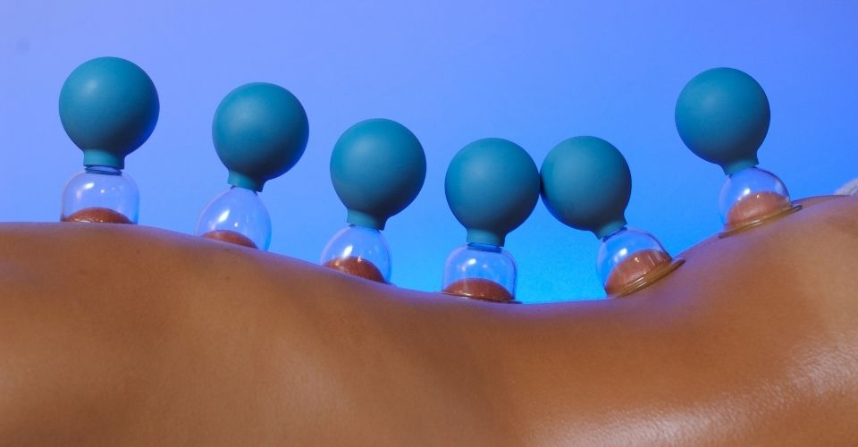 Transformational Cupping